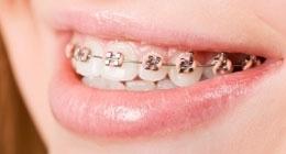 ortodonzia adulto