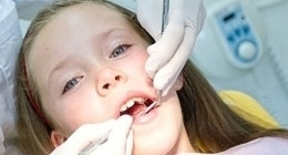ortodonzia bambino